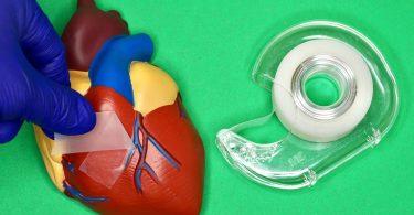 Медики навчилися загоювати внутрішні органи за допомогою спеціального скотча