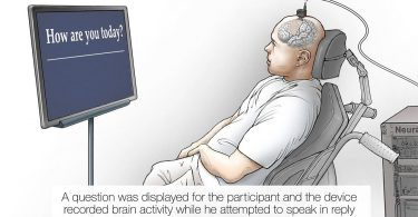 Нейропротез